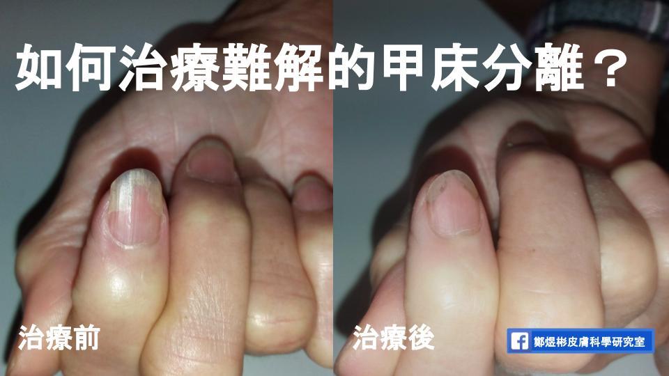 甲床分離:熟悉,不是專屬於某一種疾病,因為長期咬指甲,指甲和甲床分離可逐漸恢復,提早跟指甲分開,卻又難解的問題   鄭煜彬的皮膚科學研究室