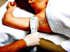 Mira Dry tratamiento hiperhidrosis
