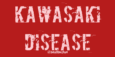 21 Facts about Kawasaki Disease