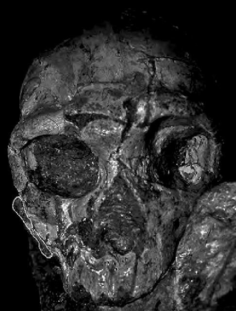 Greek hominin skull of Apidima 2 radiometrically dated to 160,000 years of age