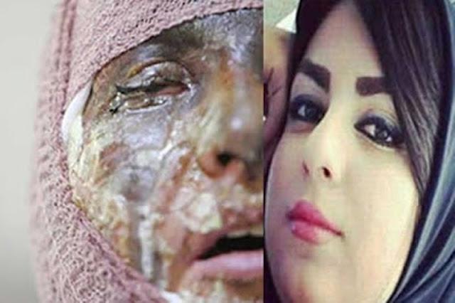 Mata Dibalas Mata, Wanita Iran Ini Dihukum Harus Sampai Buta. Alasannya?