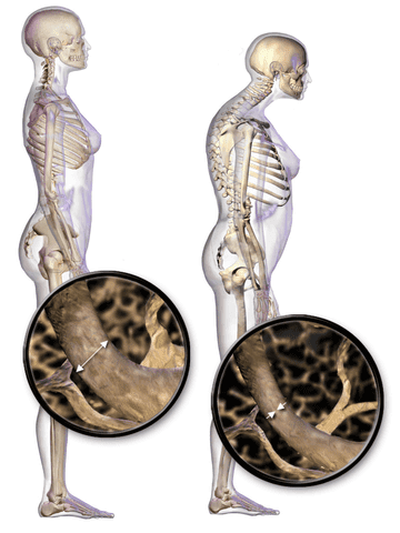 Osteoporosis-Causes, Symptoms, Prevention and Treatment