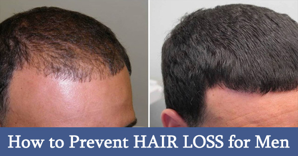 How to Prevent HAIR LOSS for Men