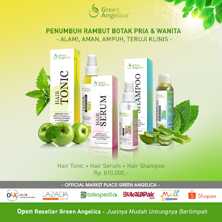 paket penumbuh rambut botak maximal treatment green angelica