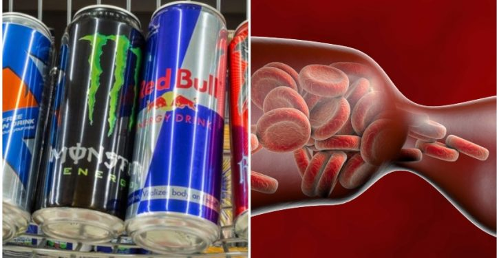 New Study Reveals That Drinking A Single Energy Drink Narrows Blood Vessels In 90 Minutes