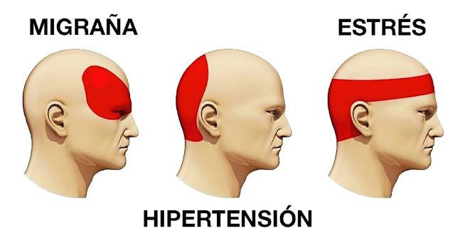 El Libro Gordo de la Vida - Tipos de dolor de cabeza
