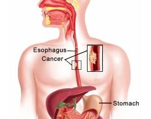 manfaat daun kenikir untuk esophagus