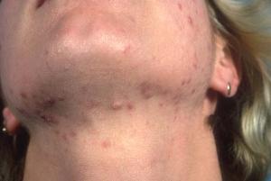 Воспаление прыщи на подбородке и шее