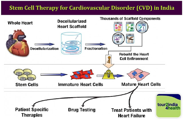 Stem Cell Therapy for Cardiovascular Disorder (CVD) in India with Tour2India4Health
