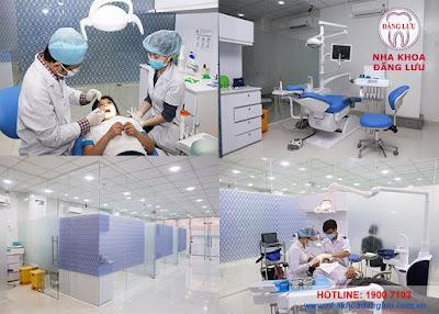 Chi phí niềng răng hợp lý tại Nha khoa Đăng Lưu