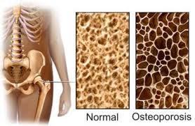Cómo evitar y tratar la osteoporosis