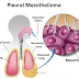Pleural Mesothelioma | Detailed Treatment, Prognosis & Diagnosis