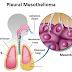 Pleural Mesothelioma | Detailed Treatment, Prognosis & Diagnosis