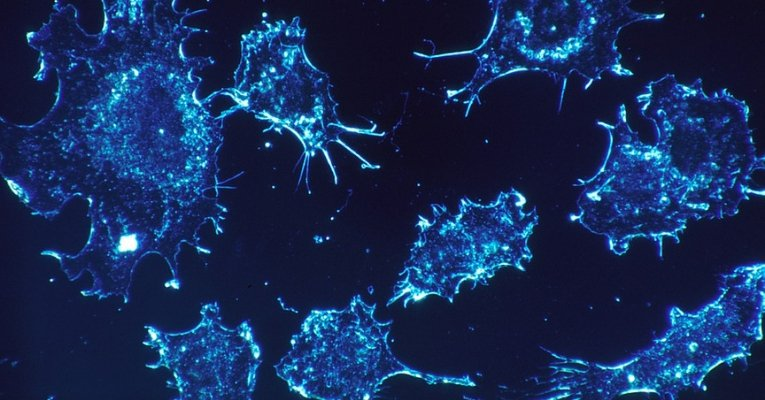 Israeli Scientists Claim They Have Found The Cure For Cancer