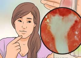 alat vital wanita keluar darah