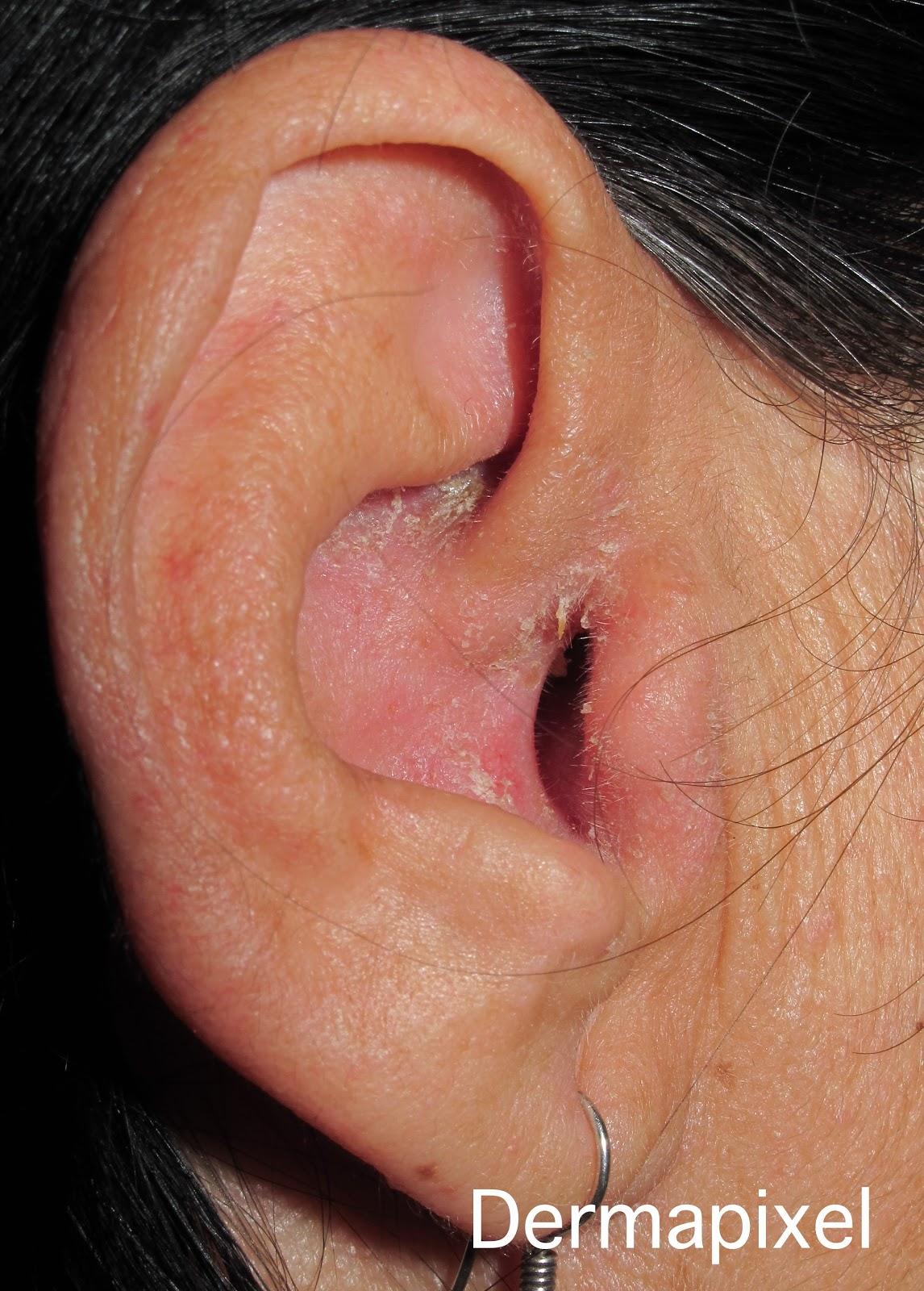 Dermatitis seborreica del conducto auditivo