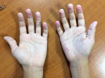 Vipsogal el ungüento de la psoriasis