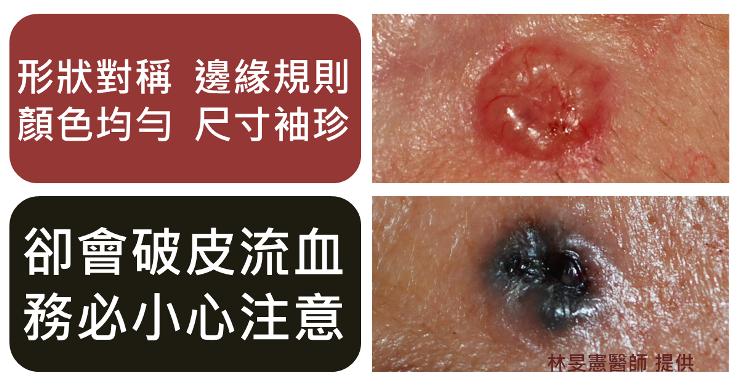 基底細胞癌長得像顆痣但會破皮流血