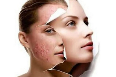 cara hilangkan bintik hitam di hidung