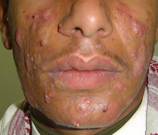 Adult cystic acne