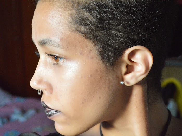 Vitanol A para a Acne: Primeira semana