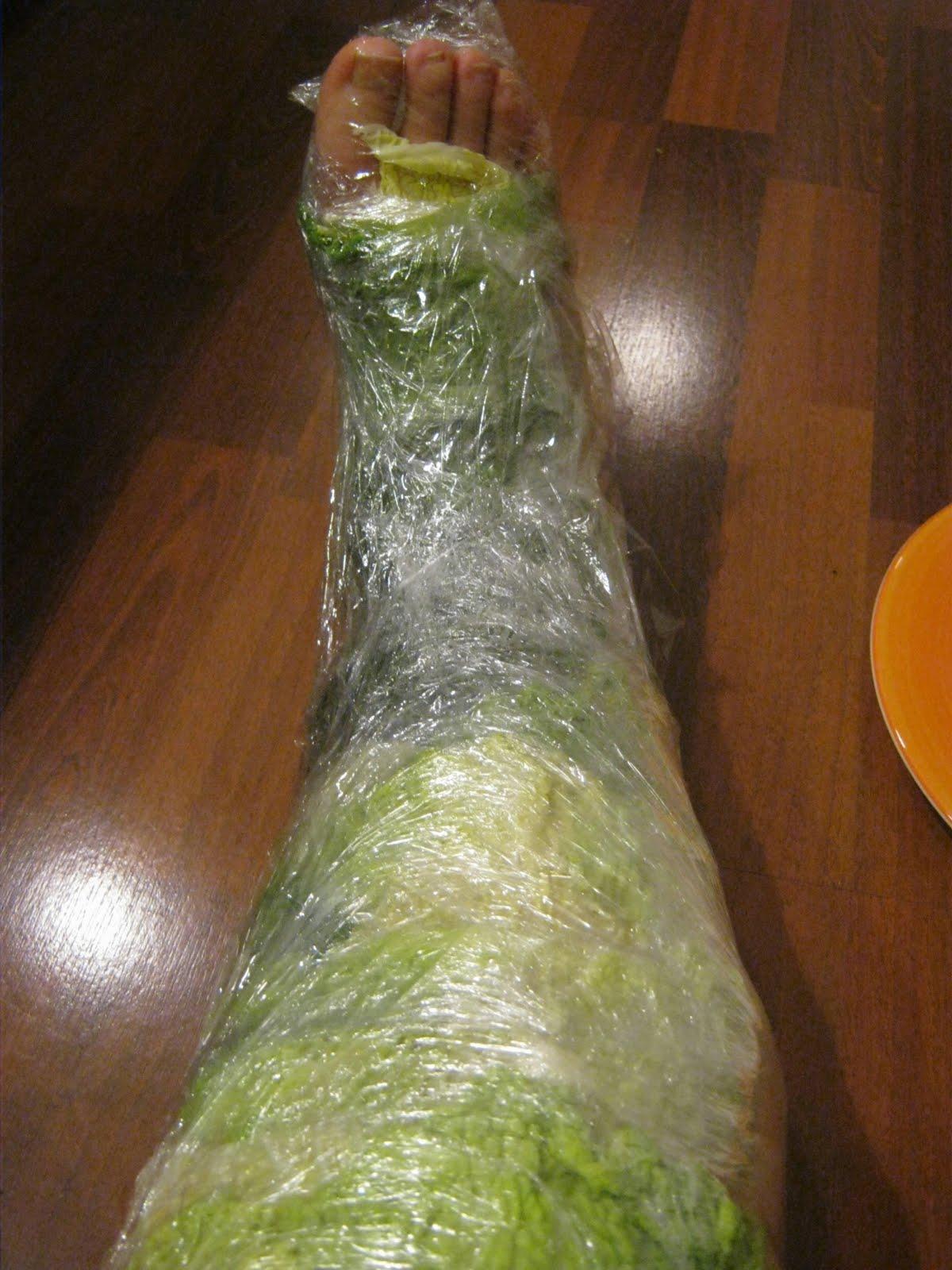 LymphedemaGirl: Cabbage poultice, Vol  1