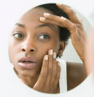Treatments For Itchy Eyes  Symptoms of itchy eyes sometimes can be alleviated with over-the-counter artificial tears or allergy eye drops . But in many cases, prescription eye drops or oral medications may be needed to provide relief. Some medications also may help you become less prone to attacks of itchy eyes in the future, especially if symptoms are due to seasonal allergies.