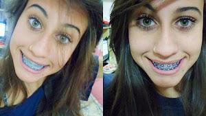 Lembra da 'menina mais linda do Facebook'? veja como ela está hoje em dia