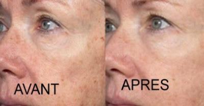 Comment enlever les taches de pigmentation