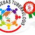 Besok, Parosil Launching RAD Penanggulangan TB