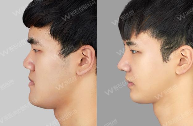 짱이뻐! - Before and After Photos Korean Plastic Surgery for Men