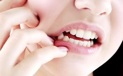 17 Cara menghilangkan sakit gigi sampai keakar-akarnya
