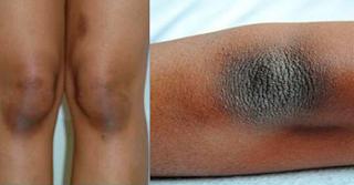 blanchir les genoux et les coudes noirs