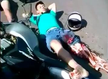 Motociclista con la Pierna Desollada