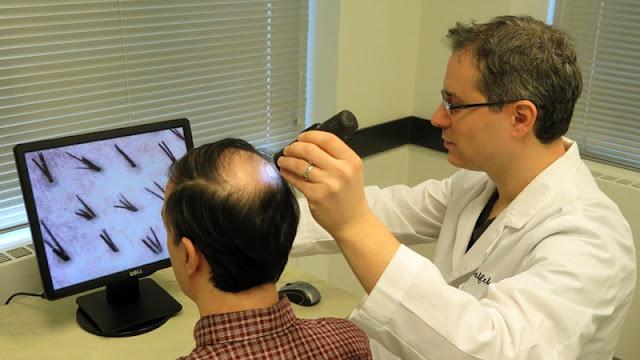 Sepele Sih, Tapi Katanya Rambut Rontok Bisa Jadi Penyakit Kanker Kronis, Benarkah?