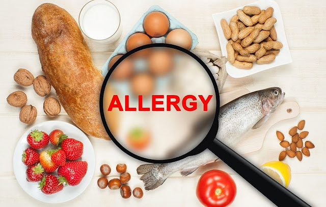 Image of several food groups representing food allergies causes by intestinal permeability.