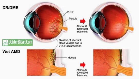 Degenerasi Makular Penurunan Penglihatan Pusat - Penyebab Gejala dan Obat Yang Ampuh