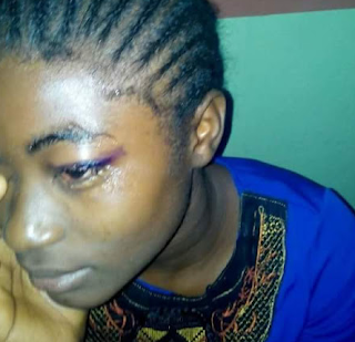 Nigerian girl survives fatal accident that claimed lives of all passenger