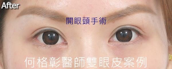 韓式隱痕開眼頭術後