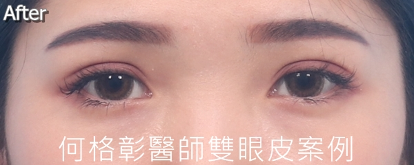 訂書針開放式雙眼皮術後