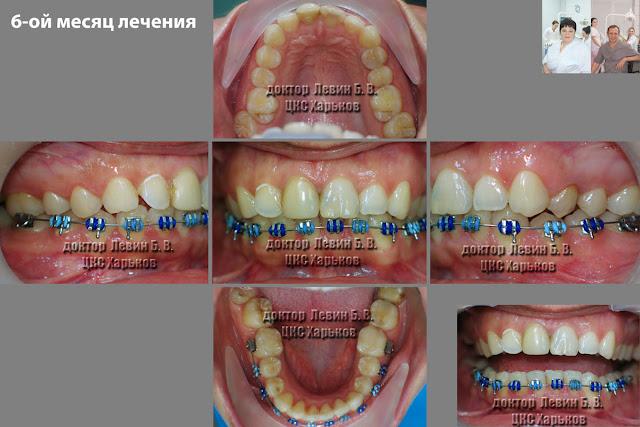 5 фото зубов характеризующих прикус в ходе лечения брекетами