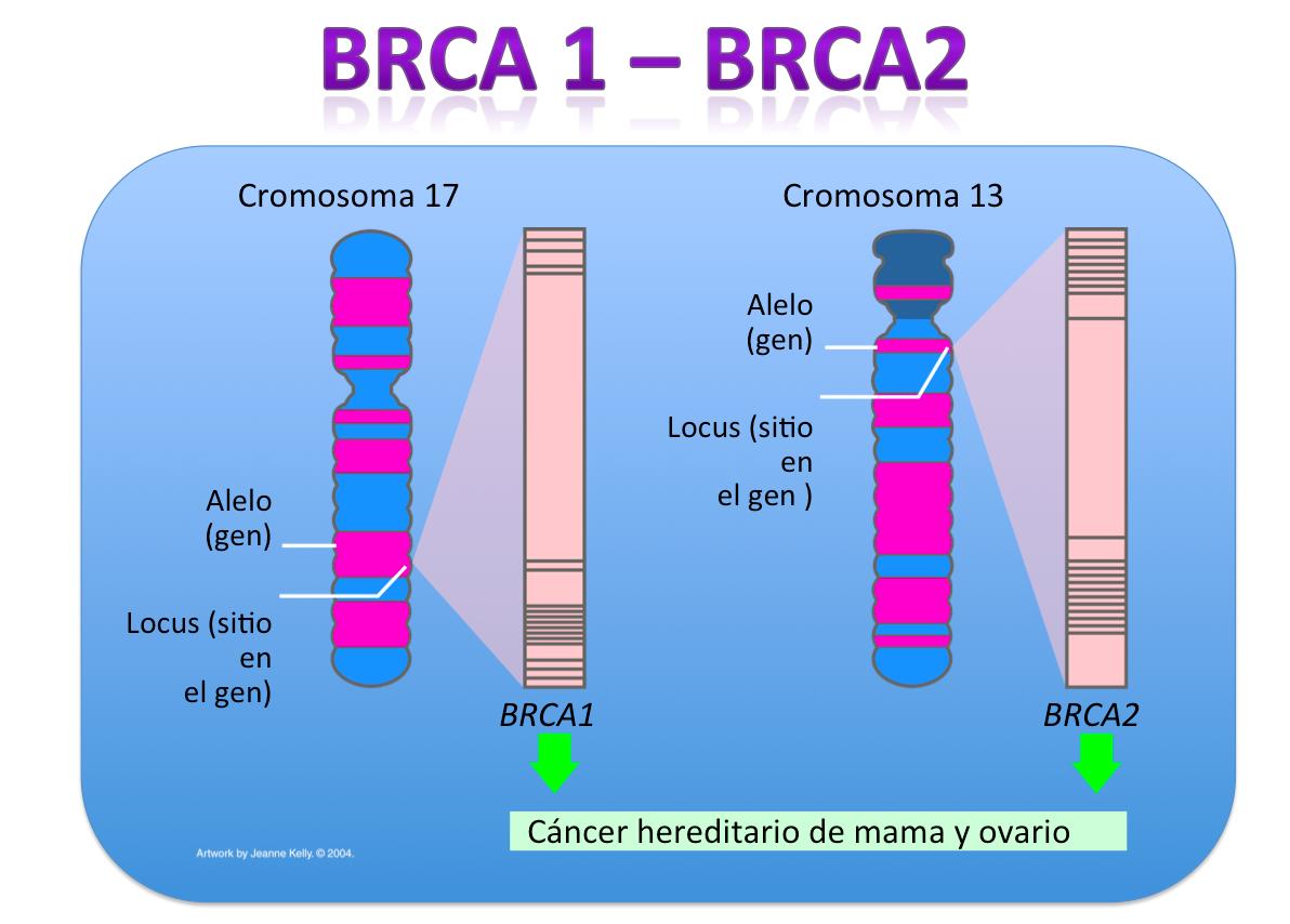 Lactancia y cáncer de ovario