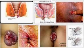 Gambar Penjelasan Tentang Penyakit Wasir Lengkap