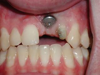 Bị gãy răng hàm không trồng răng có sao không