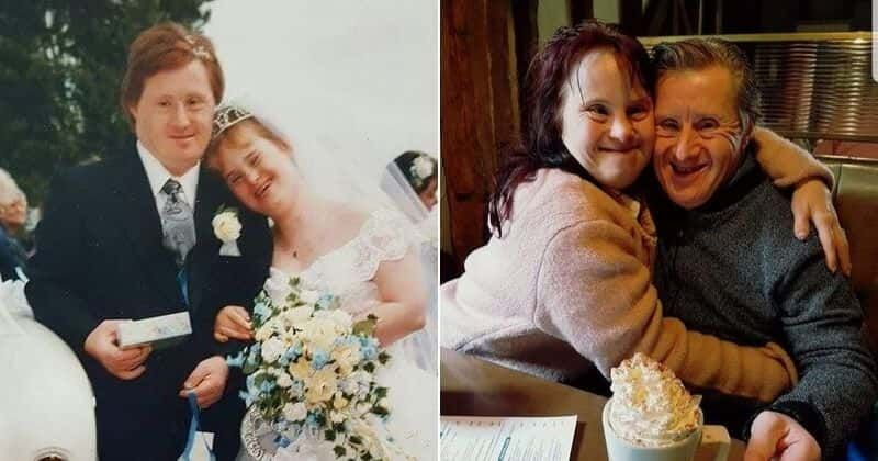 Couple With Down Syndrome Celebrated 24 Years Of Marriage