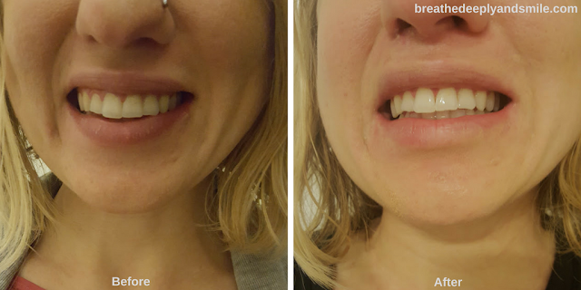 teeth-whitening-smile-brilliant-before-after