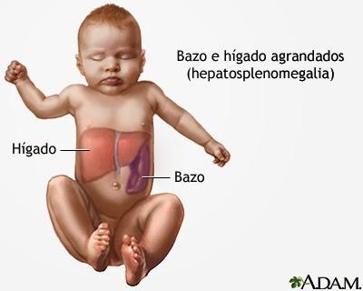 Causas de hepatomegalia en recien nacidos