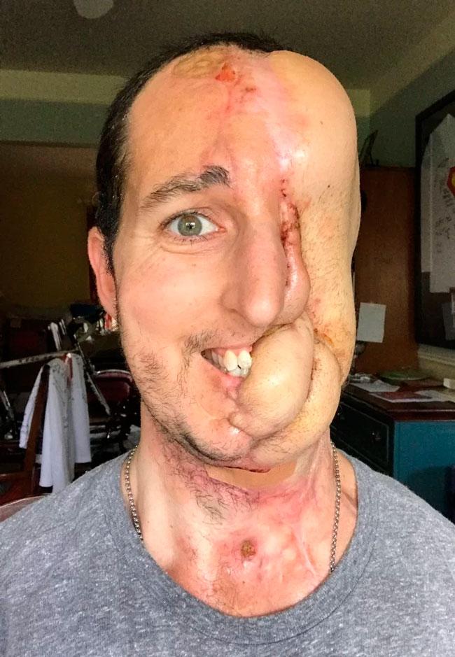Homem tem rosto reconstruído após câncer raro