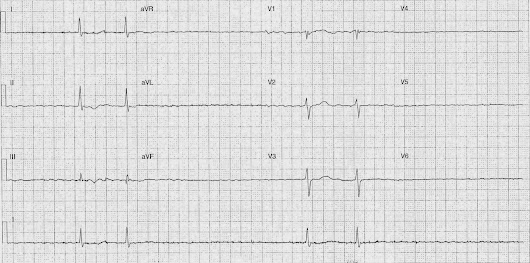 ECG of the Week - 20th October 2014