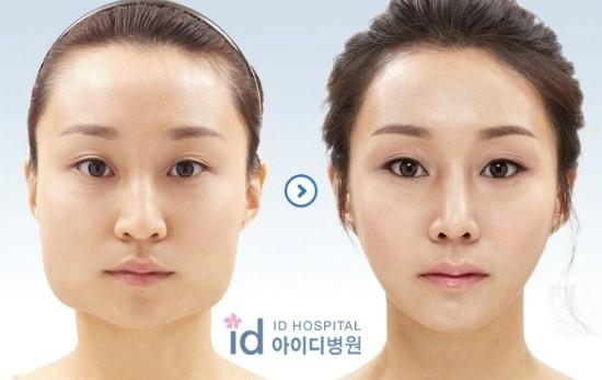 Dramatic Korean Plastic Surgery Changes Photos